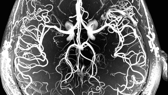 Blood vessels of the human brain shown via Magnetic Resonance Angiography